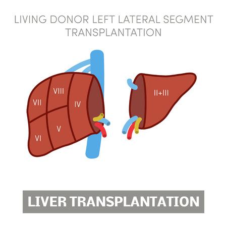 Living donor left lateral segment liver transplantation, vector Illustration