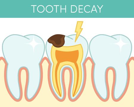 caries dental: La caries dental que afectan a los dientes molares humanos. Vectores