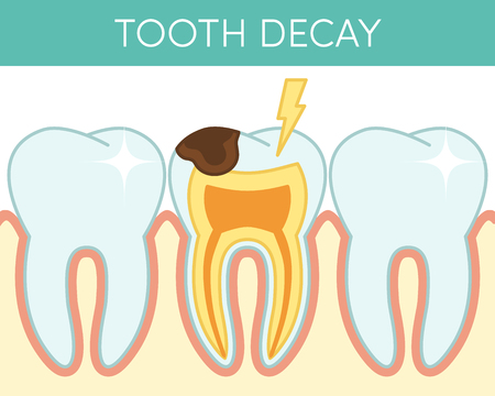 Dental caries affecting human molar tooth.