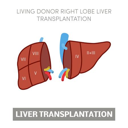 piggyback: Living donor right lobe liver transplantation, vector