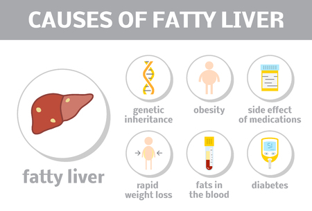 fatty liver: Causes of steatosis. Vector elements for liver disease infographic Illustration