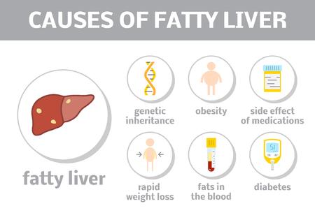 Las causas de esteatosis. vector elementos de infografía enfermedad hepática