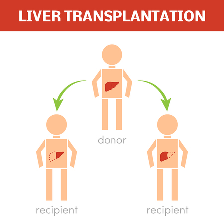 Liver transplantation vector concept 일러스트