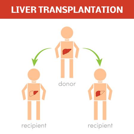 Liver transplantation vector concept Illustration