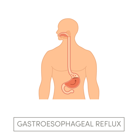 White man with gastroesophageal reflux disease. Vector heartburn concept in simple flat style Illustration