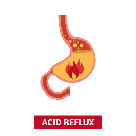 sphincter: ACID reflux disease. Vector heartburn concept in simple flat style