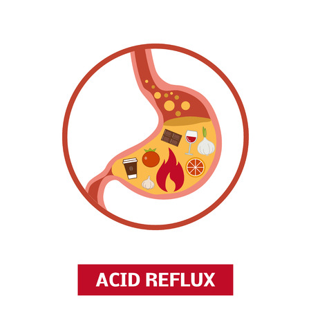 sphincter: Foods that causes acid reflux or heartburn, vector concept