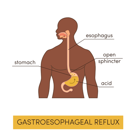 duodenum: Black man with gastroesophageal reflux disease. Vector heartburn concept in simple flat style
