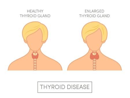 Femme en bonne santé et femelle avec glande thyroïde élargie, illustration vectorielle