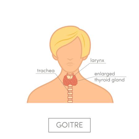 secretion: Thyroid gland anatomy of female. Cartoon vector diagram for medical atlas or educational textbook