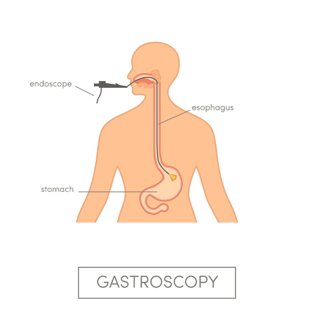 Gastroscopy vector concept, Caucasian woman getting endoscopic examination.
