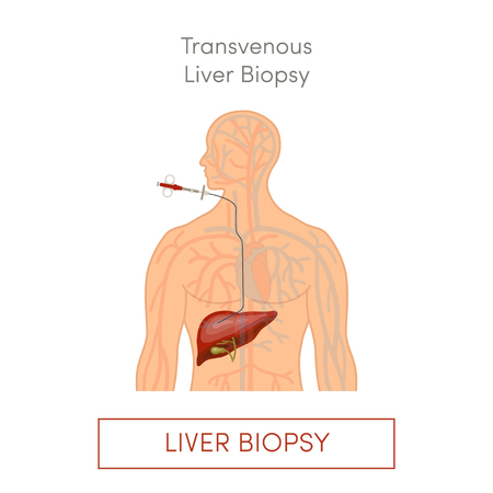 Transvenous liver biopsy, flat vector illustration
