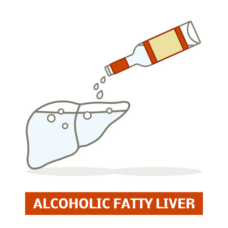 Alcoholic fatty liver concept. Silhouette of a liver is being filled with a vodka Stock Illustratie