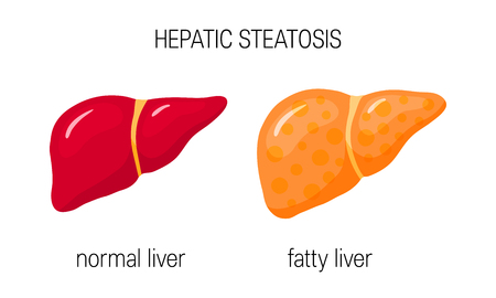 Fatty liver disease. Vector illustration of a healthy and a fatty liver in flat style