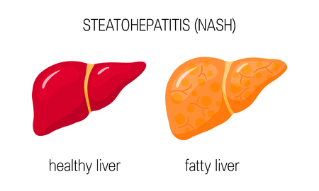Esteatohepatitis no alcohólica (NASH). Ilustración de vector de un hígado sano y graso en estilo plano Ilustración de vector