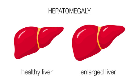 Hepatomegaly concept. Vector illustration of a healthy and an enlarged liver in cartoon style