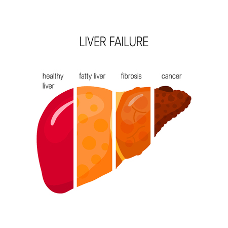Liver failure concept. Vector illustration of healthy, fatty and fibrotic liver and HCC in flat style