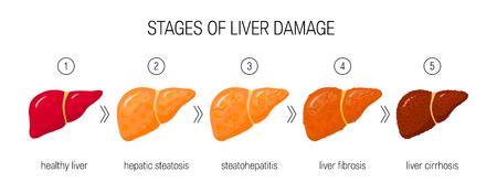 Etapas del concepto de daño hepático. Ilustración de vector de hígado sano, esteatosis, NASH, fibrosis y cirrosis en estilo de dibujos animados