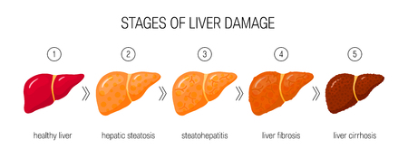 Stages of liver damage concept. Vector illustration of healthy liver, steatosis, NASH, fibrosis and cirrhosis in cartoon style