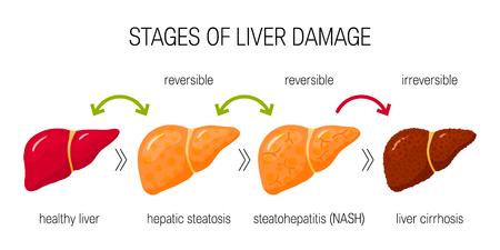 Etapas del concepto de daño hepático. Ilustración de vector de afecciones hepáticas reversibles e irreversibles en estilo plano