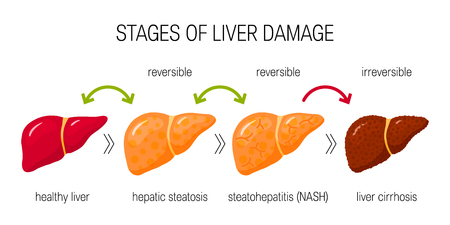 Stages of liver damage concept. Vector illustration of reversible and irreversible liver conditions in flat style  イラスト・ベクター素材