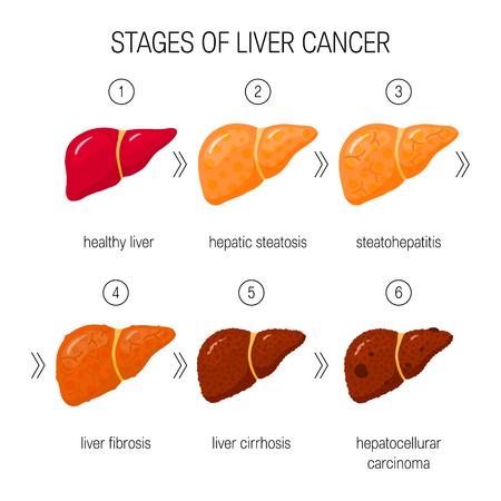 Fasi del concetto di danno epatico. Illustrazione vettoriale di fegato sano, steatosi, NASH, fibrosi, cirrosi e cancro in stile cartone animato Vettoriali