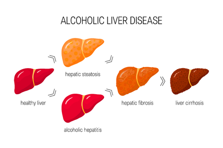 Stades de la maladie alcoolique du foie. Illustration vectorielle de foie sain, stéatose, hépatite, fibrose et cirrhose en style cartoon