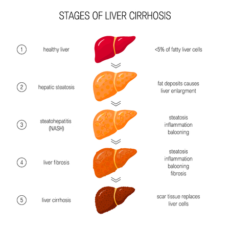 Stages of liver failure concept. Vector illustration of healthy, fatty, NASH, fibrotic and cirrhotic liver in flat style