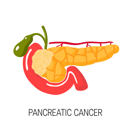 Pancreatic cancer concept. Medical vector illustration of pancreas, duodenum and gallbladder Illustration