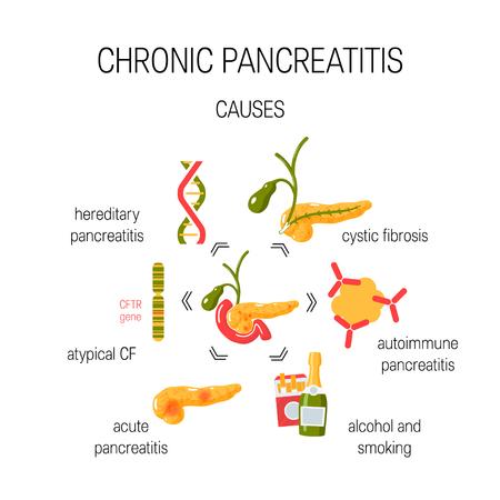 Causes of chronic pancreatitis. Medical vector concept. 向量圖像