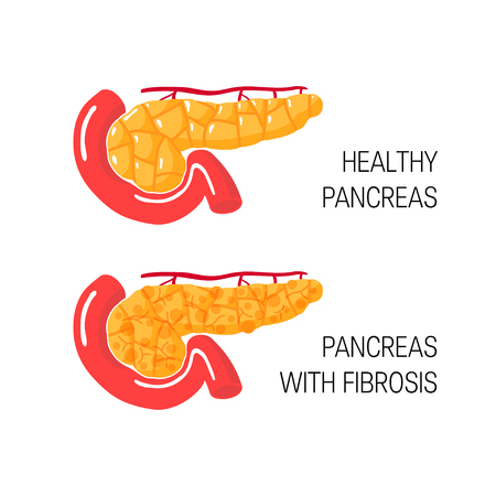Pancreatic fibrosis concept. Medical vector illustration of healthy pancreas and gland with chronic pancreatitis