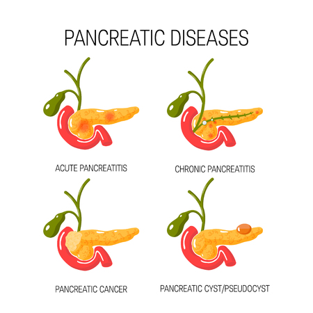 Diseases of the pancreas concept. Medical vector illustration of acute and chronic pancreatitis, pancreatic cyst ans cancer.