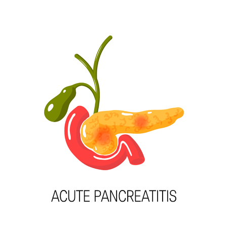 Acute pancreatitis concept. Medical vector illustration of inflamed pancreas, duodenum and gallbladder