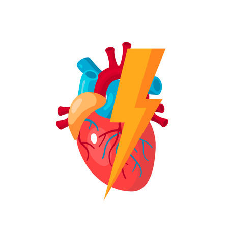 Heart diseases concept. Vector illustration for medical articles, education textbooks, web banners etc. in flat style Vektorgrafik