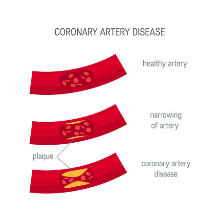 Coronary artery disease concept. Healthy and narrowed arteries with plaques. Medical vector illustration in flat style