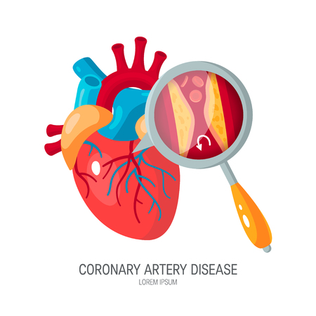 Coronary artery disease concept. Human heart and zoomed artery with plaque. Medical vector illustration in flat style