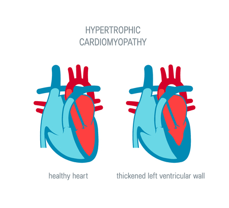 Hypertrophic cardiomyopathy disease concept. Vector illustration for articles, educational textbooks etc. in flat style Illustration