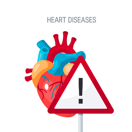 심장 질환 개념입니다. 기사, 교육 교과서, 웹 배너 등 플랫 스타일의 벡터 일러스트 레이 션 벡터 (일러스트)