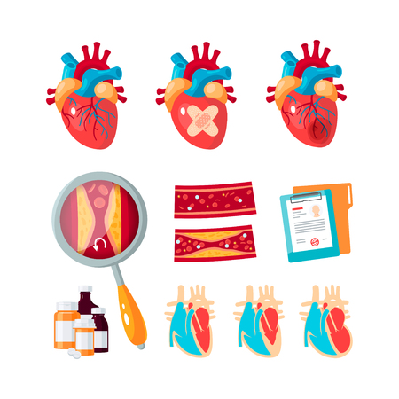 Set of cardiology vector icons in flat style. Human hearts, arteries, common cardiac diseases. Elements for medical infographics.
