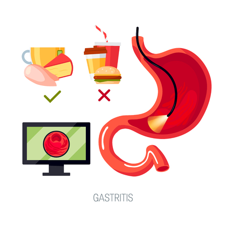 Gastritis concept. Set of elements for medical infographic. Vector illustration in flat style. Illustration