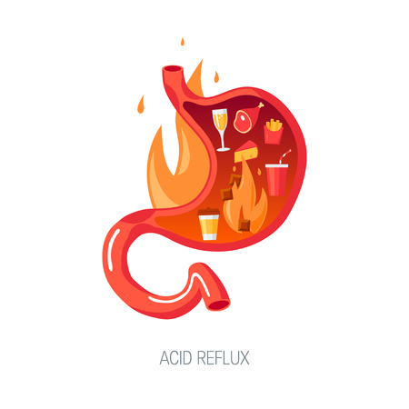 Acid reflux disease concept. Human stomach on fire, cut view. Vector illustration in flat style.
