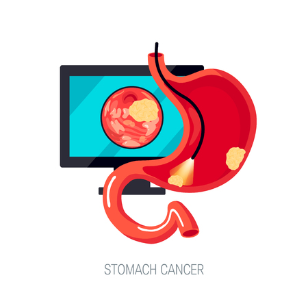 Diagnostic of gastric cancer using endoscopy. Sick human stomach with tumors, cut view. Vector illustration in flat style. Illustration