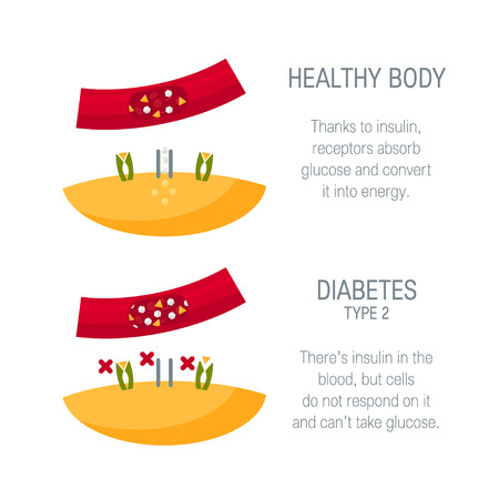 Diabetes type 2 concept. Diagram for medical infographic. Vector illustration in flat style