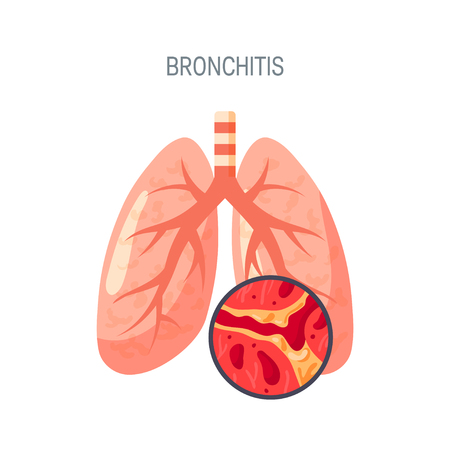 Bronchitis disease concept. Vector illustration in flat style for medical atlases, articles, infographics etc. Vectores