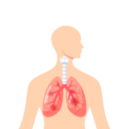 Irritated lungs concept. Vector illustration in flat style for medical atlases, articles, infographics etc.