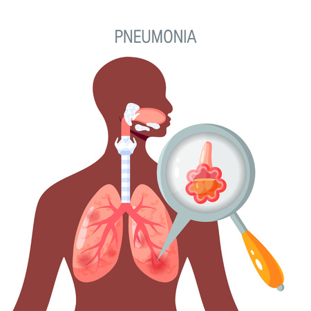 Pneumonia disease concept. Vector illustration in flat style for medical atlases, articles, infographics etc.