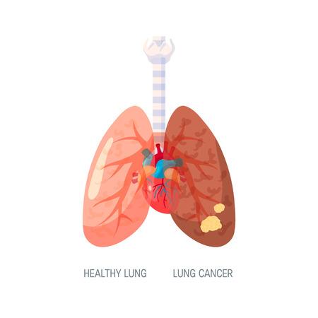 Notion de cancer du poumon. Illustration vectorielle dans un style plat pour les articles médicaux, les affiches, les bannières Web, les infographies, etc. Vecteurs