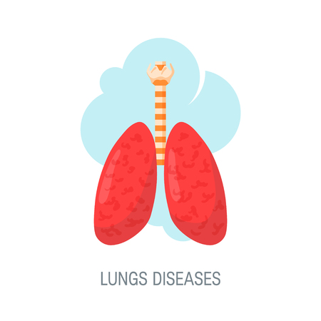 Human lungs diseases concept. Vector illustration in flat style for medical atlases, articles, educational textbooks etc. Illustration