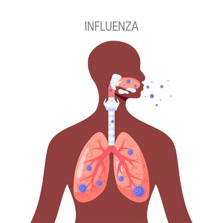 Influenza lung disease concept. Vector illustration in flat style for medical atlases, articles, infographics etc.