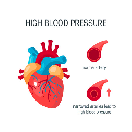 High blood pressure concept. Human heart and arteries. Elements for medical infographics in flat style. Banque d'images - 120182487